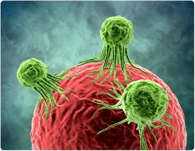 Apakah Kanker Merupakan Salah Satu Gangguan Metabolik?